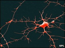 Chemical computer that mimics neurons to be created
